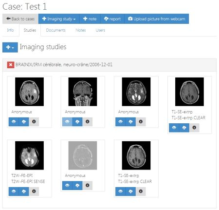 Immagini BioMediche: Guardale online con Jack Imaging Viewer